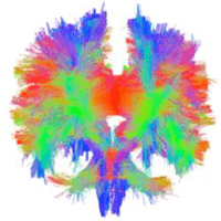 Brain tractography