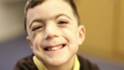 Little boy who's being helped by the University of Birmingham's Cerebra research.